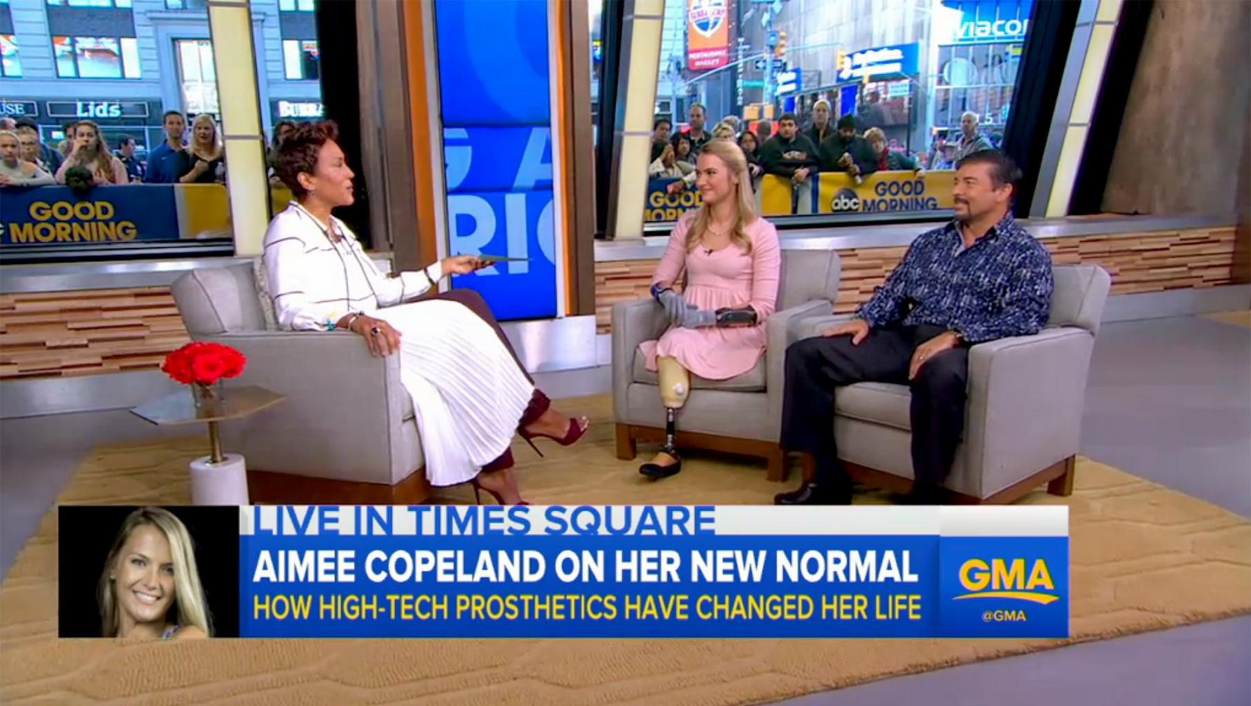 Aimee Copeland Talks Adapting to Life with Her Revolutionary Prosthetics