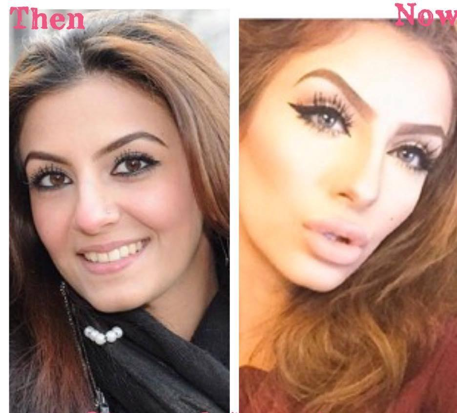 Faryal Makhdoom Before & After Plastic Surgery