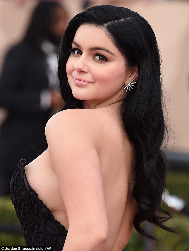 Ariel Winter On Why She Didn't Hide Her Scars At SAG Awards   Daily