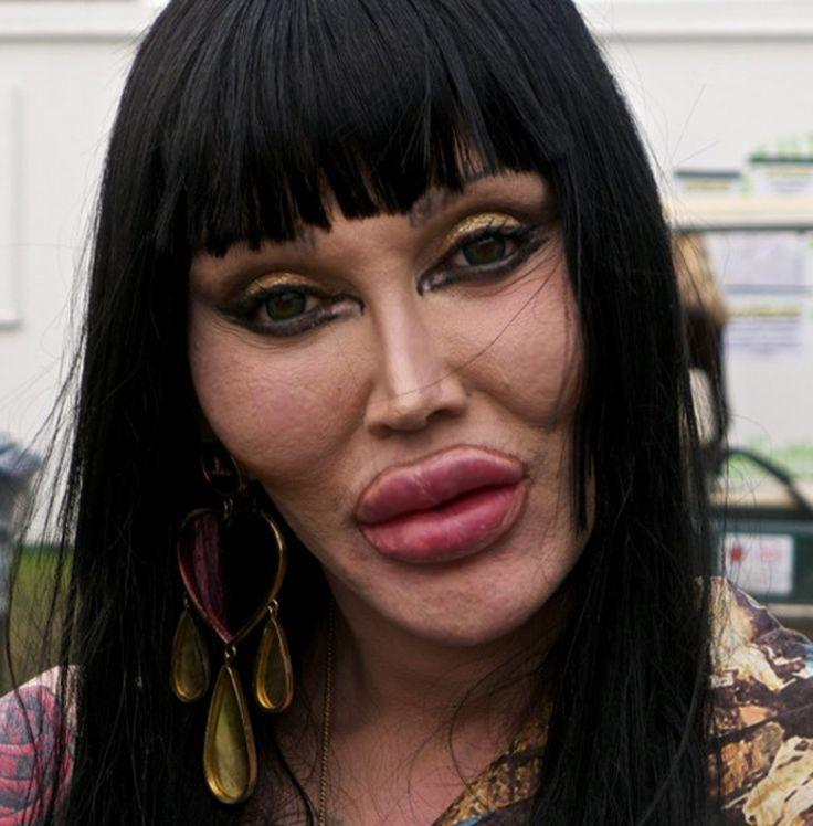 Pete Burns Celebrity Plastic Surgery Gone Wrong Good Celebrity