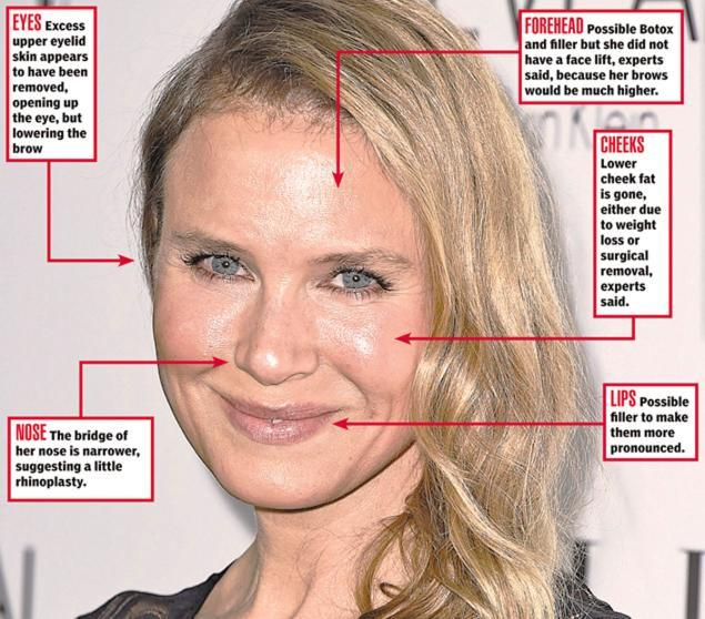 Renee Zellweger's New Face: What The Surgeons Say - NY
