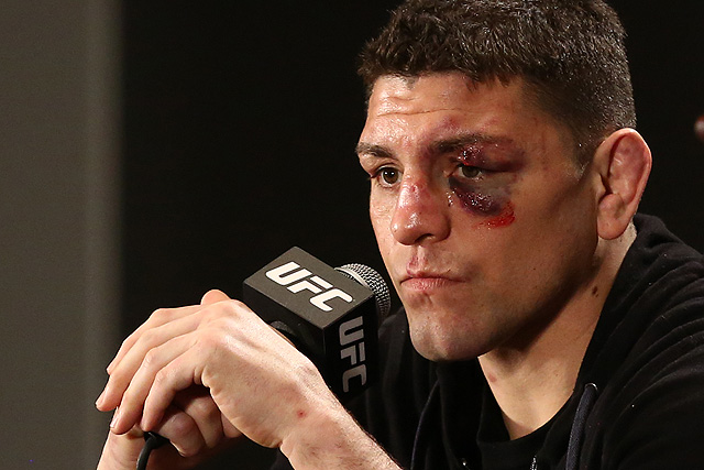 Report: Nick Diaz Tested Positive For Marijuana In UFC 183 Post